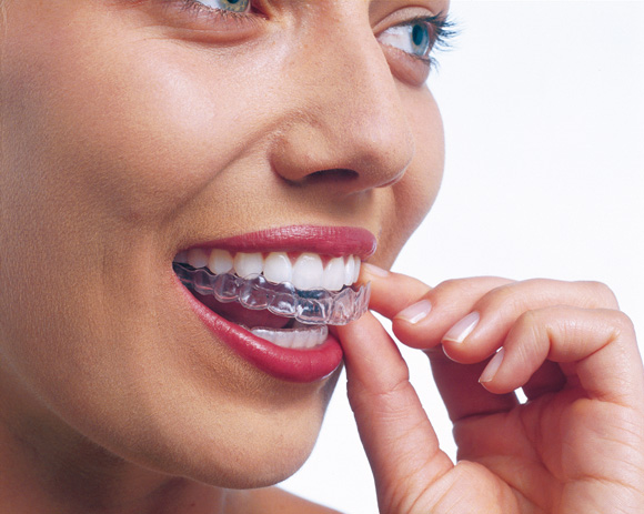 Complimentary Invisalign Assessments