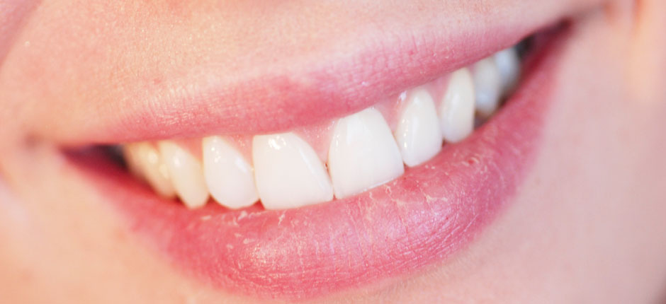 What Is Aesthetic Dentistry?