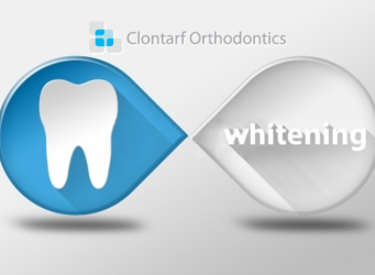 Teeth Whitening at Clontarf Orthodontics