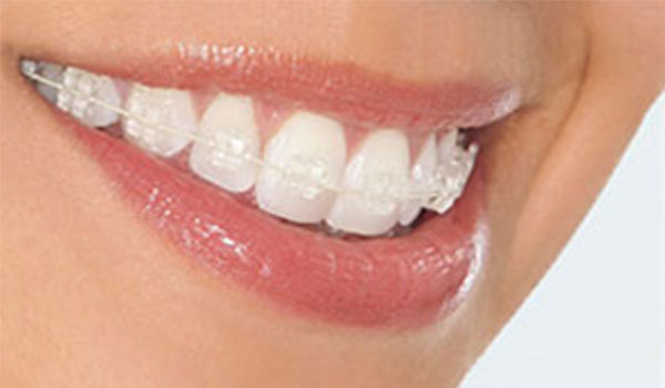 Clear-Braces | Ceramic Braces Clontarf Orthodontics