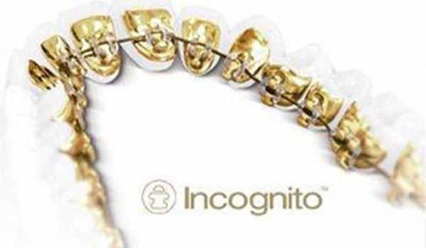 Lingual Braces Clontarf Orthodontics