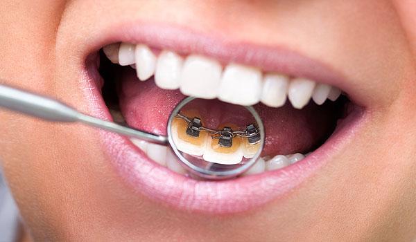 Lingual-braces-adults-clontarf-orthodontics