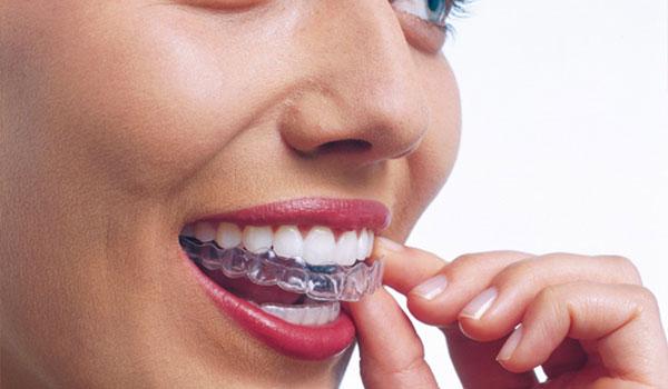 Removable-Braces Clontarf Orthodontics